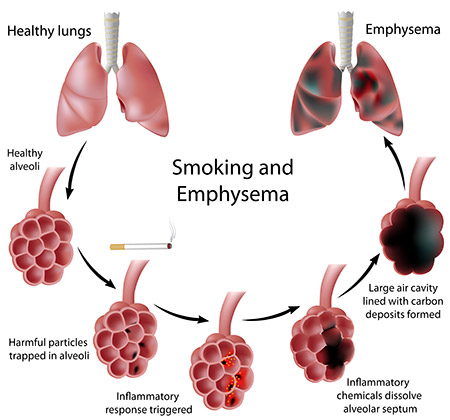 a description of diagnosis of symptoms cause and effect of emphysema