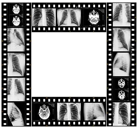 Endobronchial Ultrasound